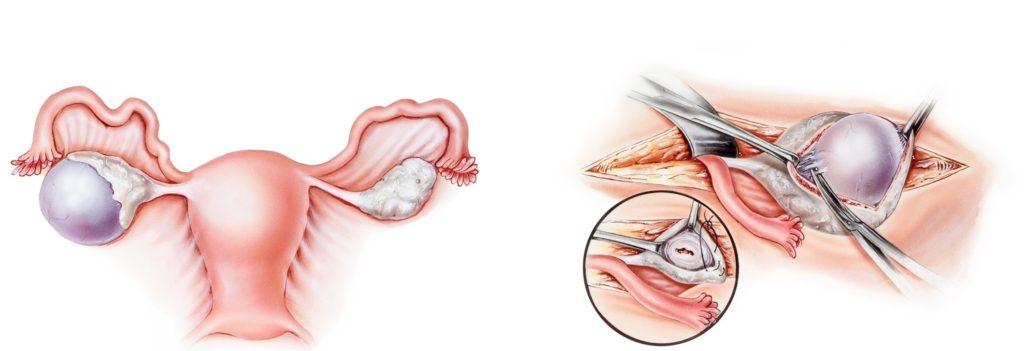 ovarian-cyst-1024x351